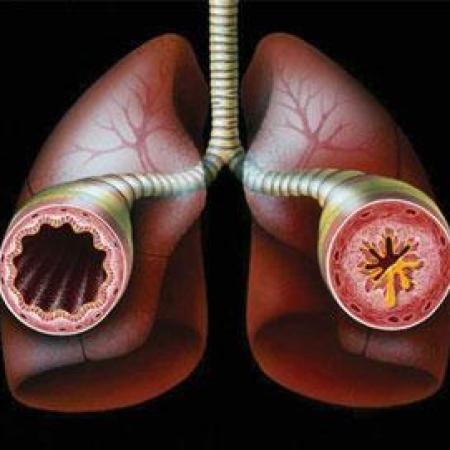 Бронхиальная астма передается ли по наследству
