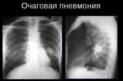 Очаговая пневмония на снимке