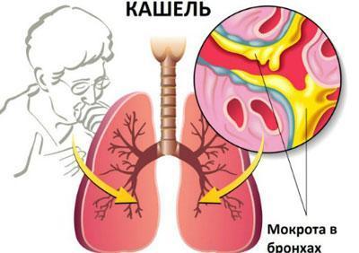 Мокрота при пневмонии