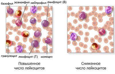 Кровь при агранулоцитозе