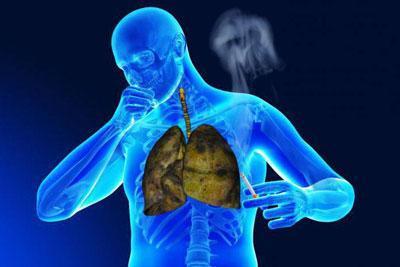 Последствия для легких при курении