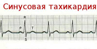 Кардиограмма при тахикардии