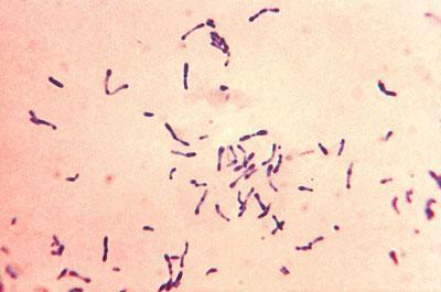 Возбудитель дифтерии Коринобактерия