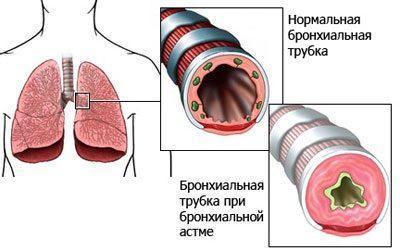 Проявление бронхиальной астмы
