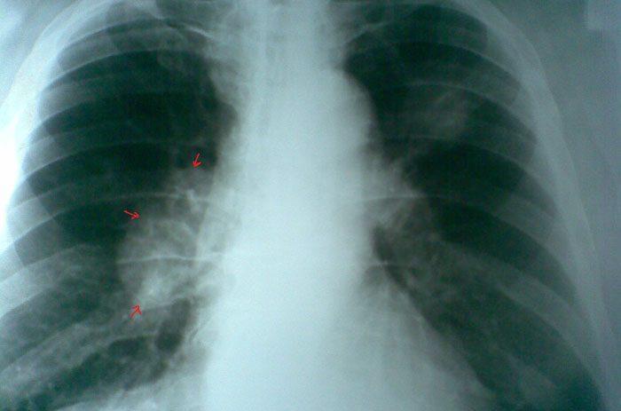 Рак легкого на рентгене