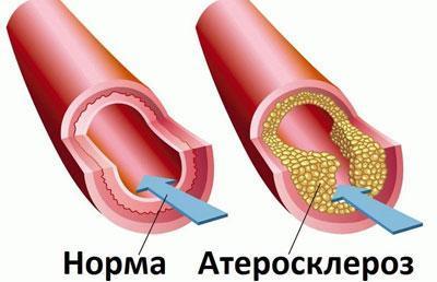 Сосуд при атеросклерозе