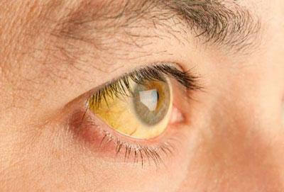 Пожелтение склер глаз