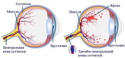 Тромбоз сосуда глаза