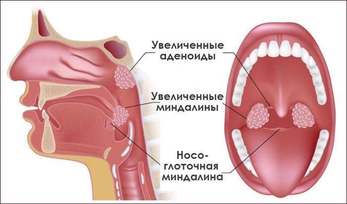 Развитие аденоидита