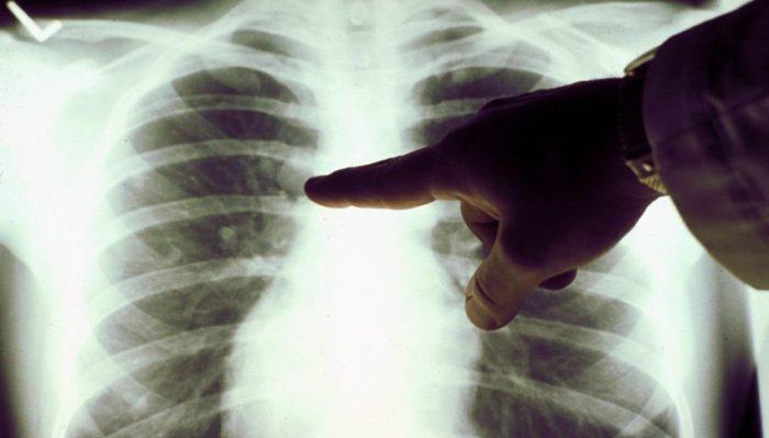 Рентген органов грудной клетки