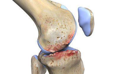 Травмирование костей при артрозе