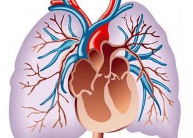 Лёгочное сердце