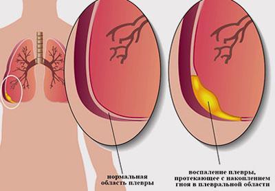 Причины гнойного плеврита легких: осложнения и методы лечения
