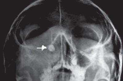 Полипы на рентгене