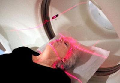 Лучевая терапия рака горла