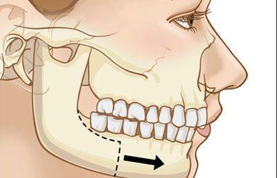 Деформация височного сустава нижней челюсти