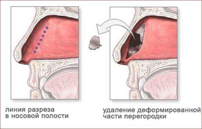 Операция по восстановлению перегородки