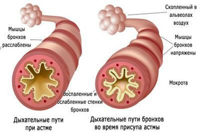 Смешанная астма что это такое