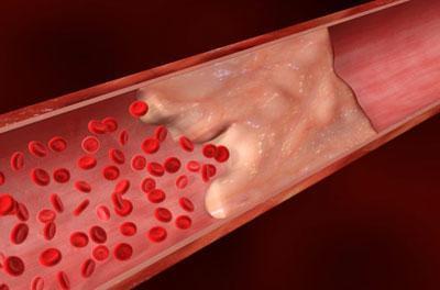 Эмболия кровеносного сосуда