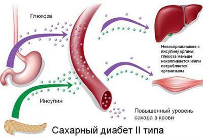 Сахарный диабет второго типа