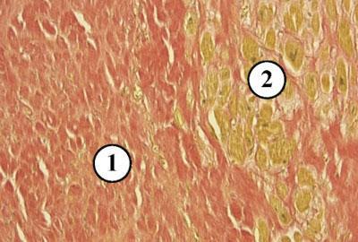 Миофиброз бронхиол под микроскопом