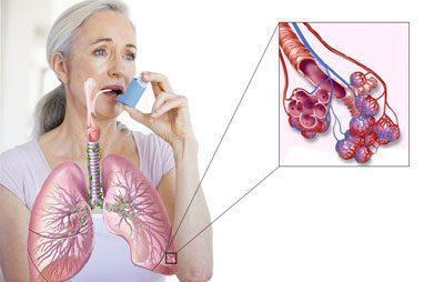 Альвеолы при астме