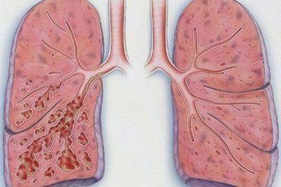 Поражение легких при курении
