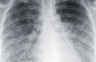 ТОРС-инфекция на рентгене