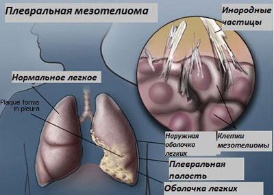 Мезотелиома легких