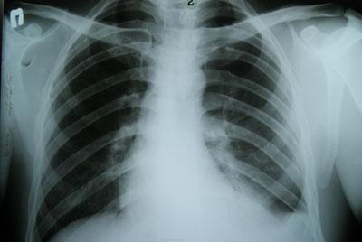 Гемопневмоторакс на рентгене