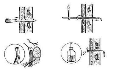 Этапы дренирования плевральной области
