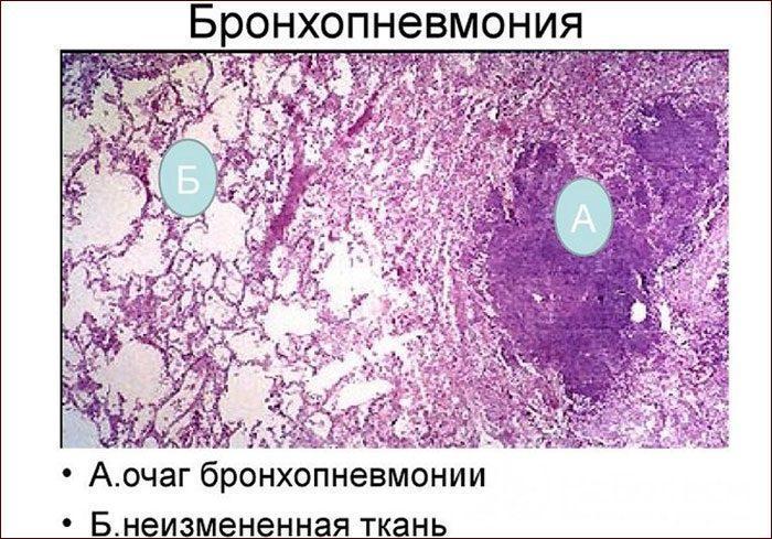 Очаги бронхопневмонии
