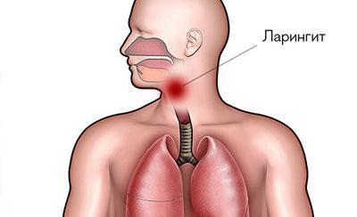 Воспаление при ларингите
