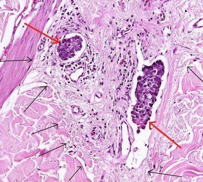 Нейроэндокринные клетки
