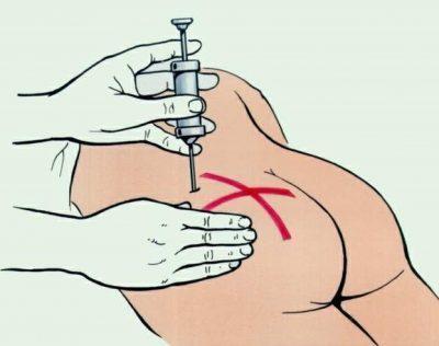 Как правильно сделать укол