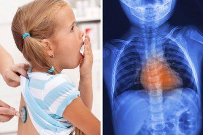 Хрипы при дыхании у ребёнка