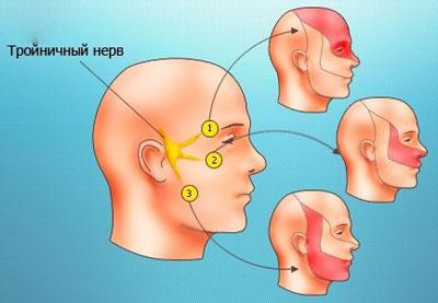 Боль при воспалении троичного нерва