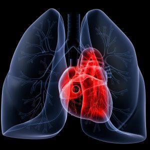 Рентген сердца