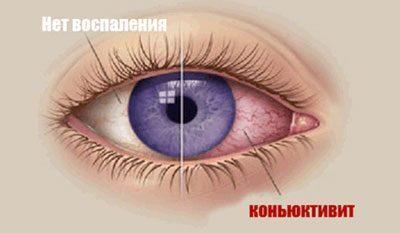 Глаз при конкъюктивите