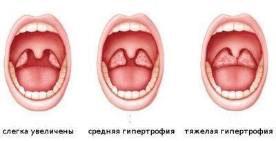 Стадии аденоидита