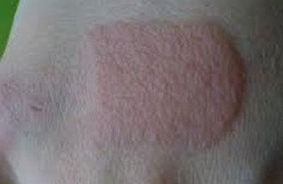 Аллергия на пластырь