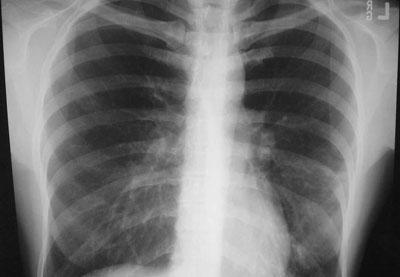 Пневмония на рентгеновском снимке