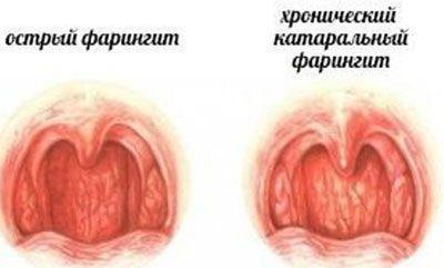 Септомирин для ингаляций детям