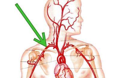 Сужение подключичной артерии