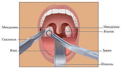 Операция аденотомия
