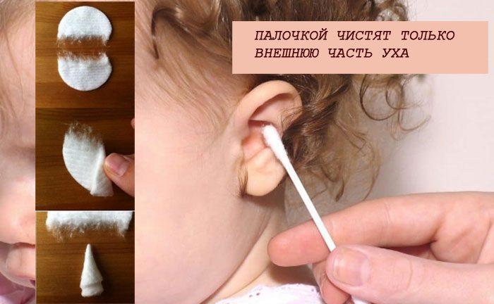 Чистка уха ребенку