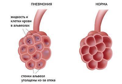 Альвеолы при воспалении легких