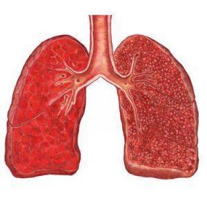 Милиарный туберкулез легких