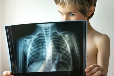 Рентгеновский снимок легких ребенка