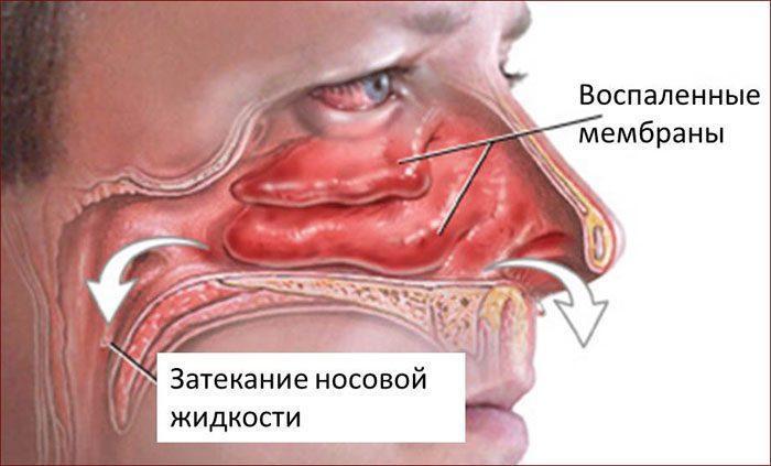 Затекание жидкости в носоглотку